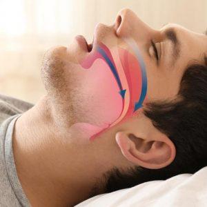 Rối loạn ngưng thở khi ngủ là gì? Nguyên nhân và cách điều trị