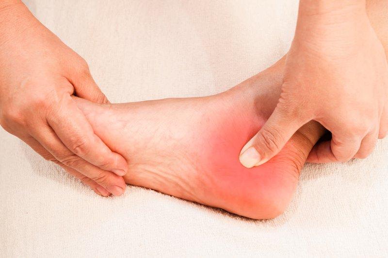 cách chữa nhức gót chân-3