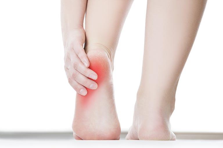 cách chữa nhức gót chân-2