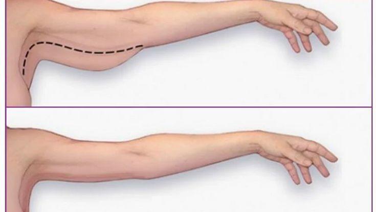 Cách làm mất cơ bắp tay -2